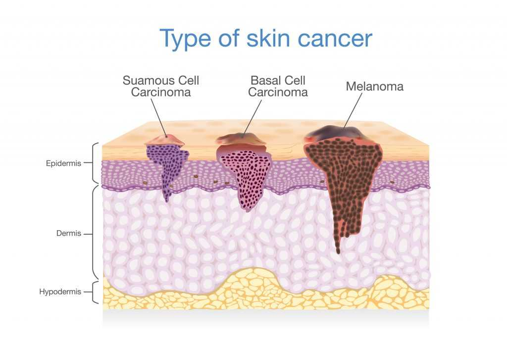 The Importance of Annual Full Body Skin Exams – Recognize ...