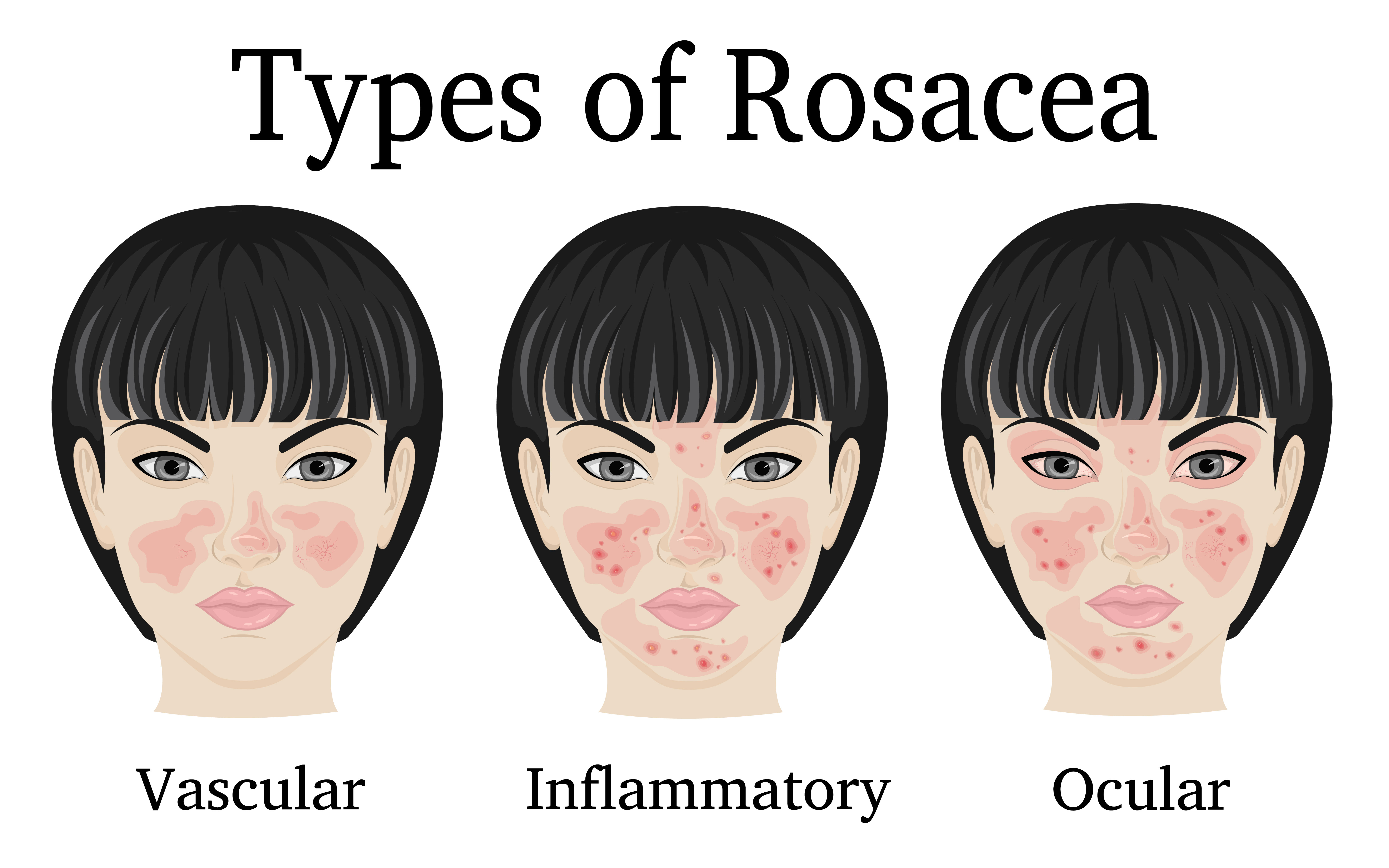Effective Treatments For Rosacea Kansas City Dermatologists At