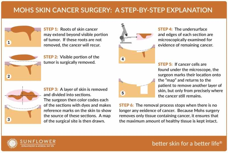A Step-by-Step Guide to the Mohs Skin Cancer Surgery Procedure
